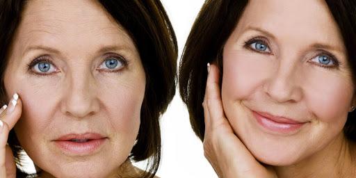 Botulino: distendere il terzo superiore del volto e combattere l'iperidrosi
